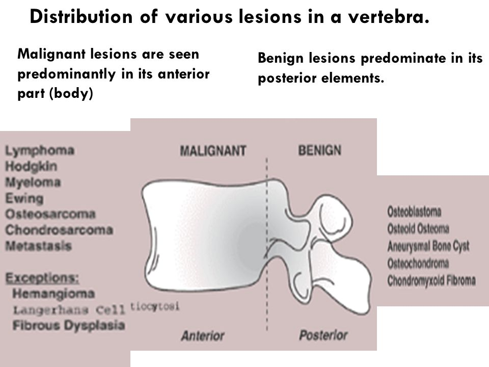 Malignant lesions are seen predominantly in its anterior part (body) Distribution of various lesions in a vertebra. Benign lesions predominate in its