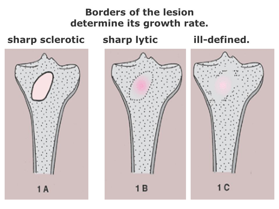 Borders of the lesion determine its growth rate. sharp scleroticsharp lyticill-defined.