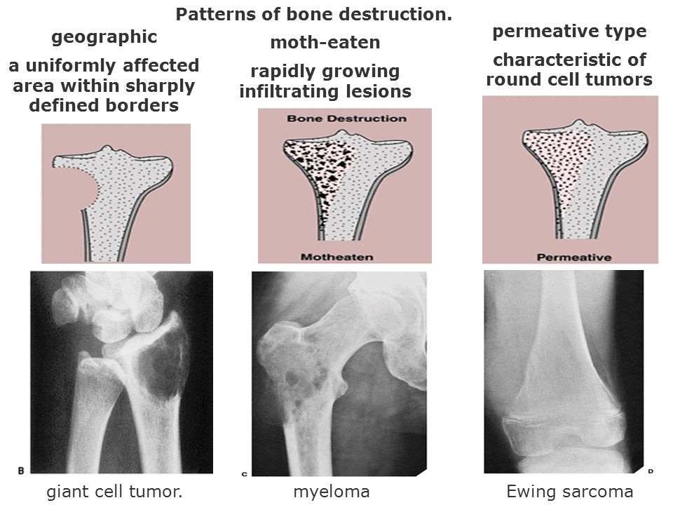 Patterns of bone destruction. geographic a uniformly affected area within sharply defined borders moth-eaten rapidly growing infiltrating lesions perm