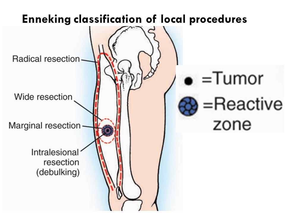 Enneking classification of local procedures