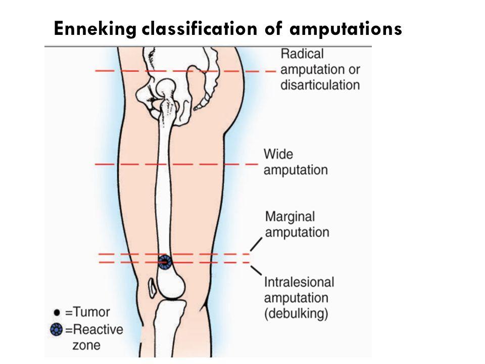 Enneking classification of amputations