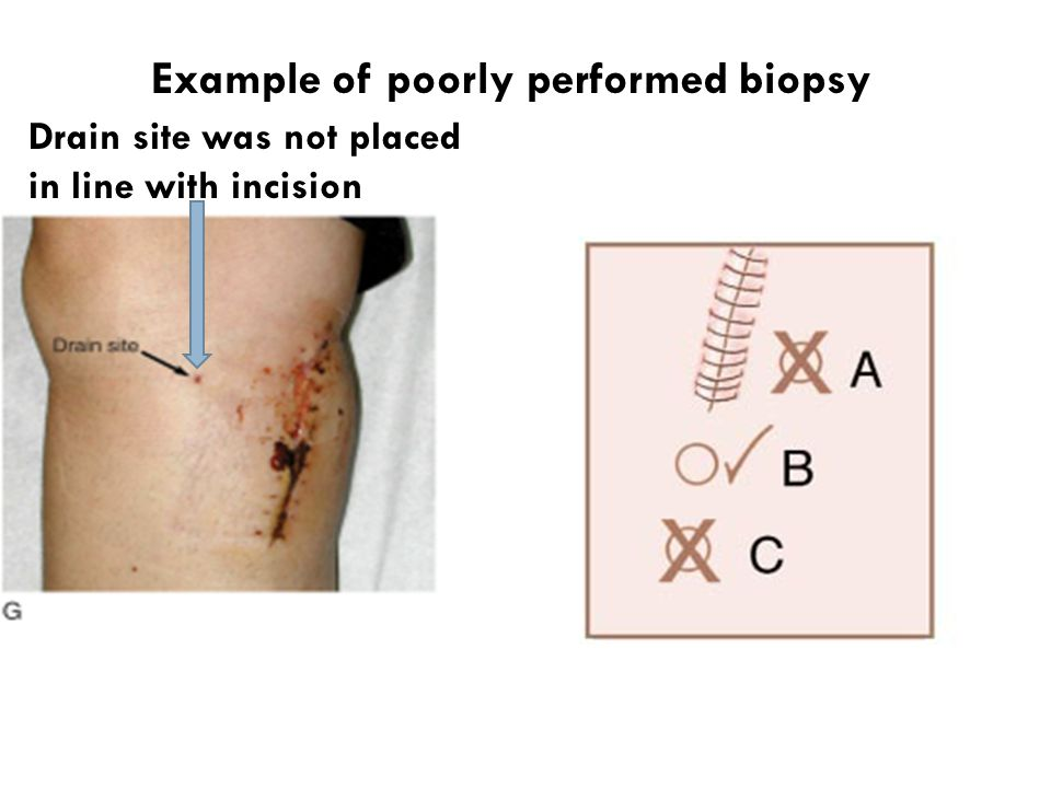 Drain site was not placed in line with incision Example of poorly performed biopsy