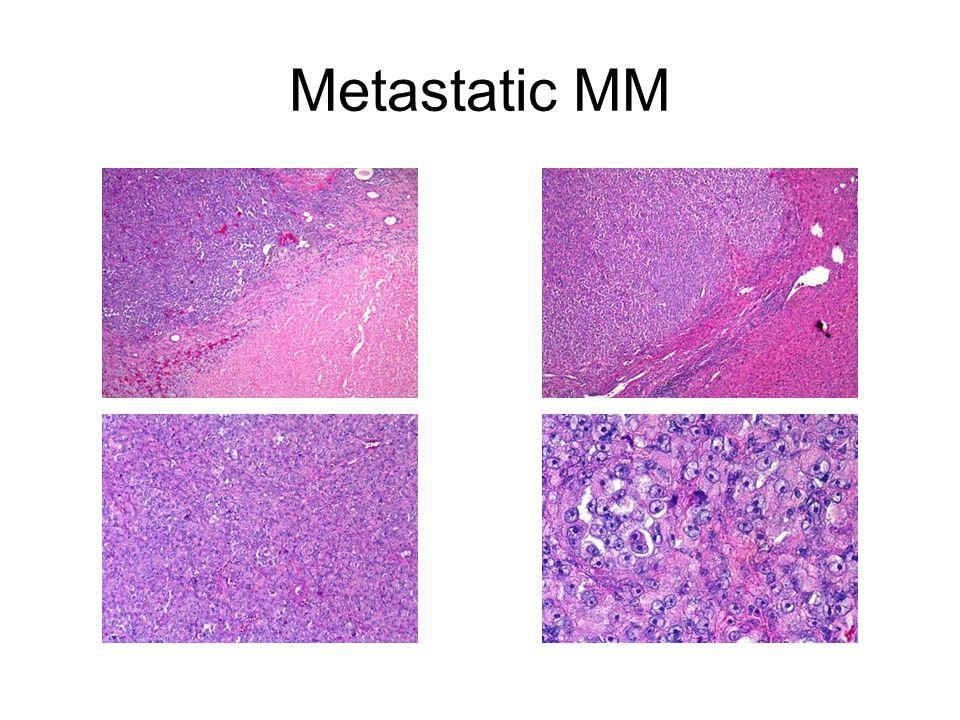 Metastatic MM