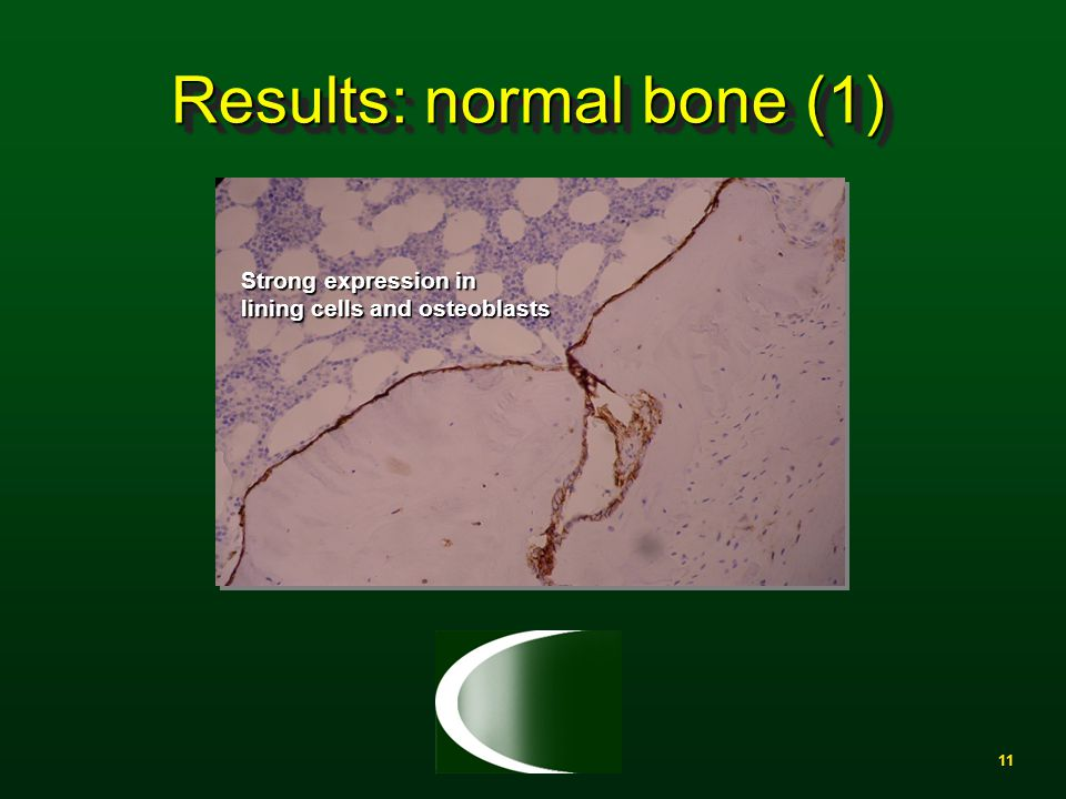 11 Results: normal bone (1) Strong expression in lining cells and osteoblasts