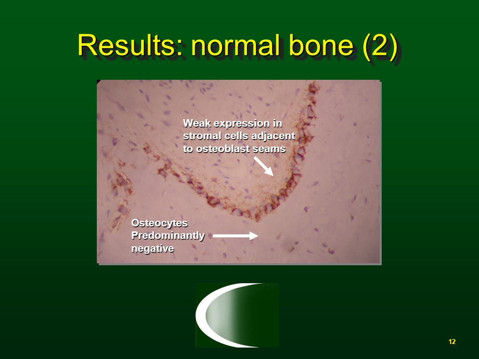 12 Results: normal bone (2) Weak expression in stromal cells adjacent to osteoblast seams OsteocytesPredominantlynegative