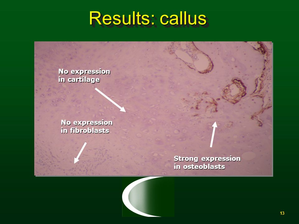 13 Results: callus No expression in cartilage No expression in fibroblasts Strong expression in osteoblasts