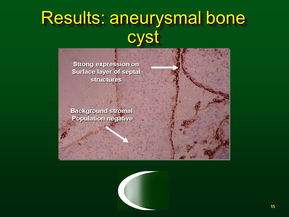15 Results: aneurysmal bone cyst Strong expression on Surface layer of septal structures Background stromal Population negative