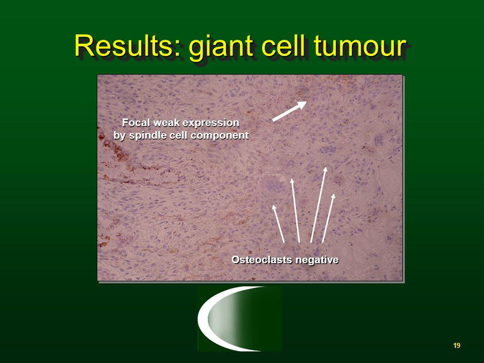 19 Results: giant cell tumour Focal weak expression by spindle cell component Osteoclasts negative