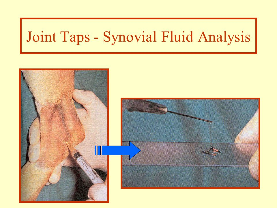 Joint Taps - Synovial Fluid Analysis