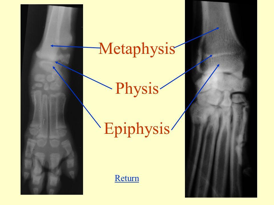 Metaphysis Physis Epiphysis Return