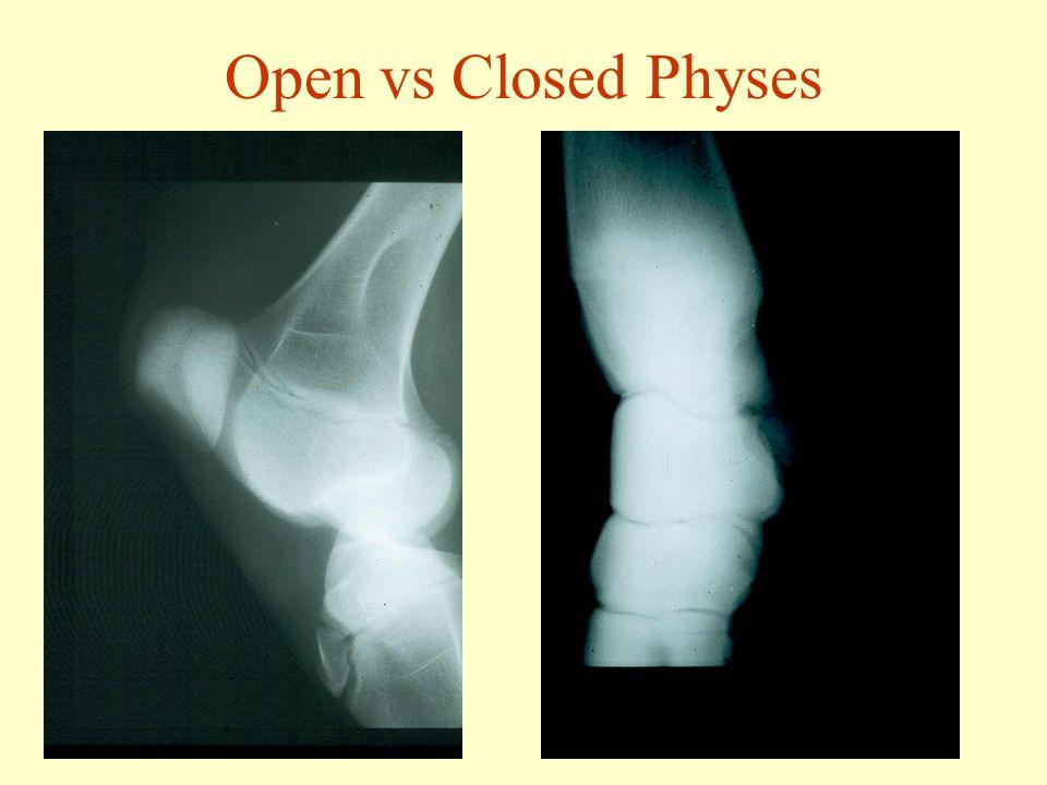 Open vs Closed Physes