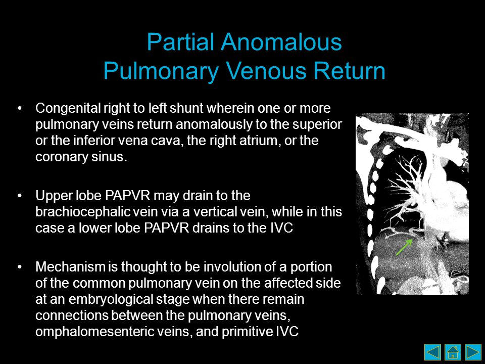 Partial Anomalous Pulmonary Venous Return Congenital right to left shunt wherein one or more pulmonary veins return anomalously to the superior or the inferior vena cava, the right atrium, or the coronary sinus.