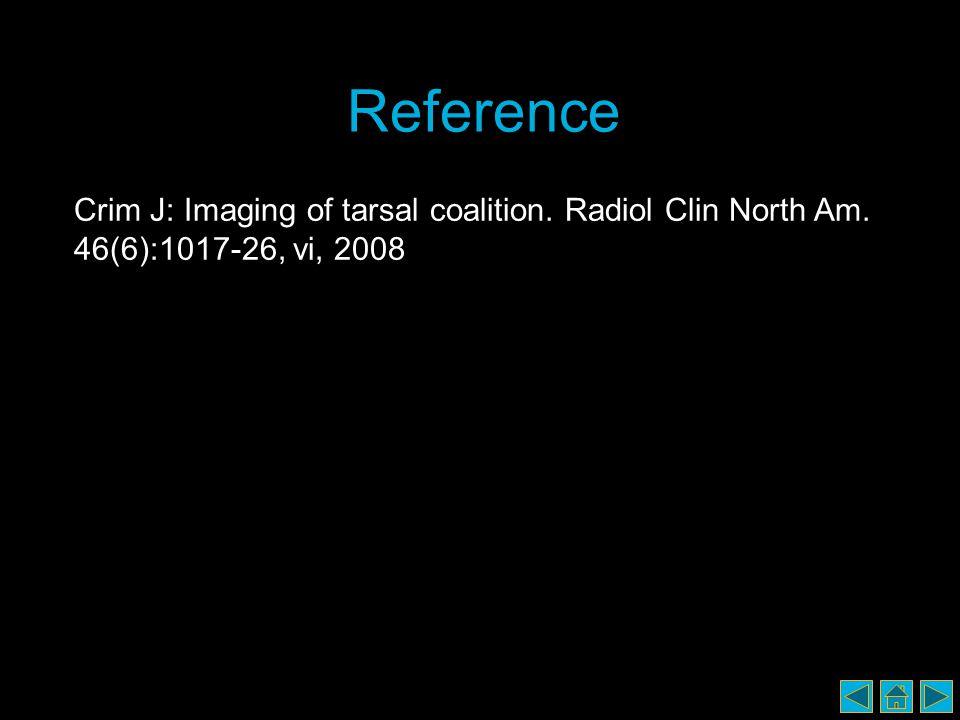Reference Crim J: Imaging of tarsal coalition. Radiol Clin North Am. 46(6):1017-26, vi, 2008