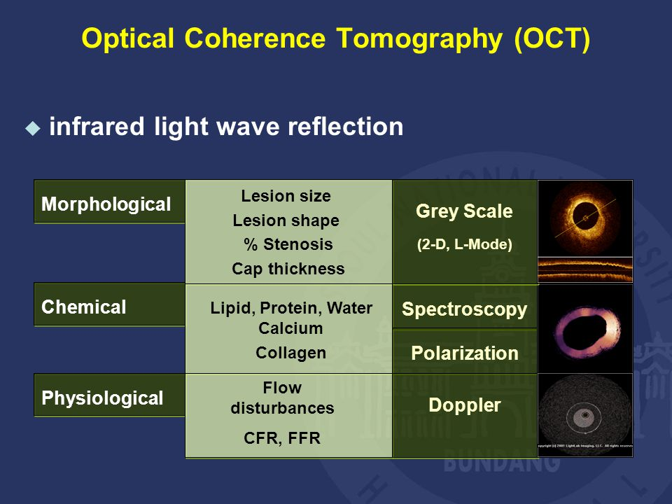 Morphological Lesion size Lesion shape % Stenosis Cap thickness Chemical Lipid, Protein, Water Calcium Collagen Physiological Flow disturbances CFR, FFR Spectroscopy Polarization Grey Scale (2-D, L-Mode) Doppler  infrared light wave reflection Optical Coherence Tomography (OCT)