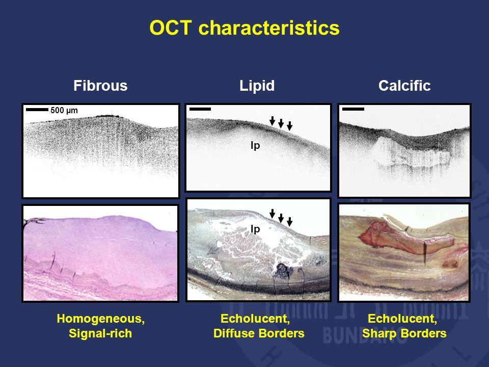 lp Homogeneous, Signal-rich Fibrous Lipid Echolucent, Diffuse Borders Echolucent, Sharp Borders Calcific 500 µm OCT characteristics