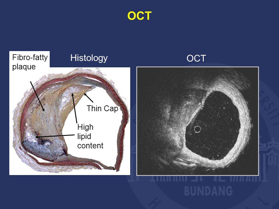 Histology OCT High lipid content Fibro-fatty plaque Thin Cap OCT
