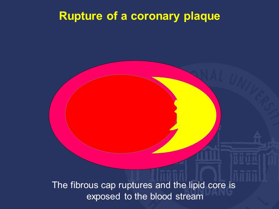 Rupture of a coronary plaque The fibrous cap ruptures and the lipid core is exposed to the blood stream