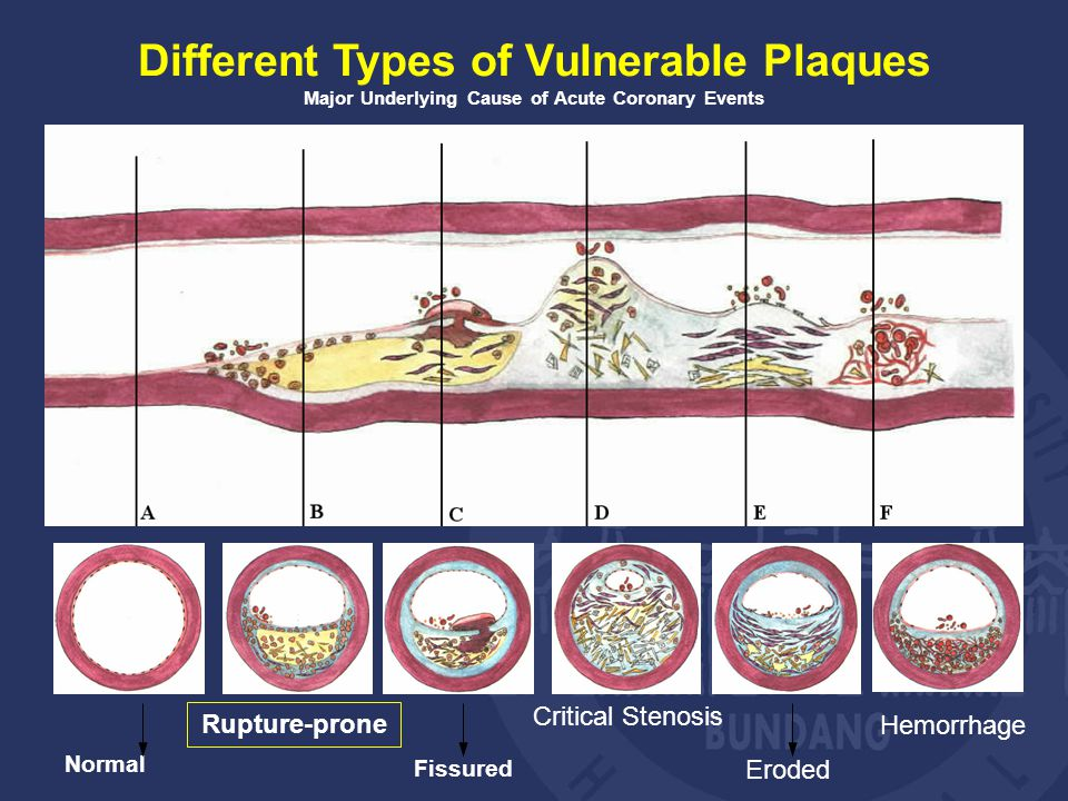 Different Types of Vulnerable Plaques Major Underlying Cause of Acute Coronary Events Normal Rupture-prone Fissured Eroded Critical Stenosis Hemorrhage