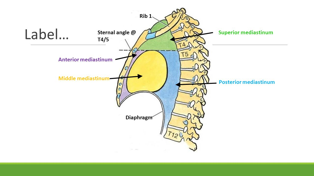 Label… Rib 1 Sternal angle @ T4/5 Diaphragm Superior mediastinum Posterior mediastinum Middle mediastinum Anterior mediastinum