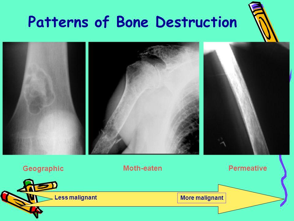 Patterns of Bone Destruction Geographic Moth-eatenPermeative Less malignant More malignant