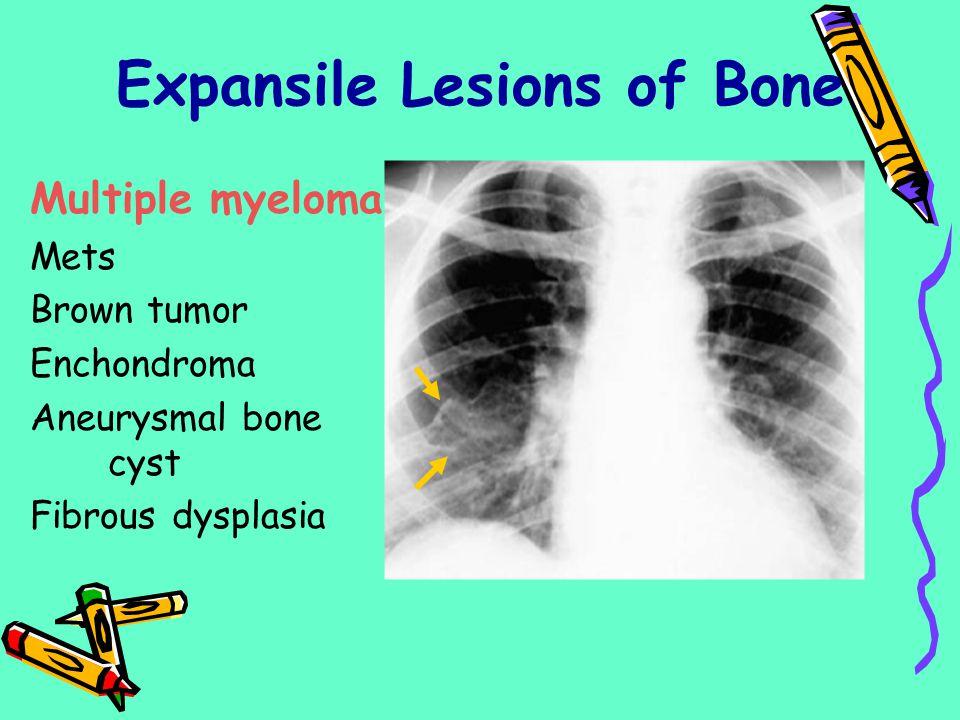 Multiple myeloma Mets Brown tumor Enchondroma Aneurysmal bone cyst Fibrous dysplasia