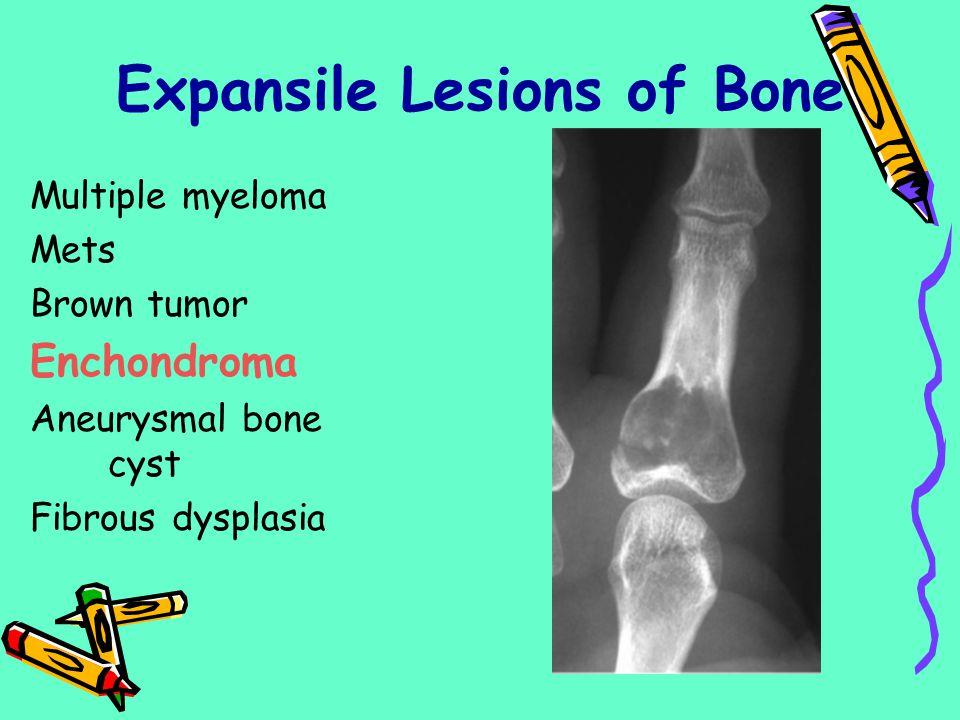 Multiple myeloma Mets Brown tumor Enchondroma Aneurysmal bone cyst Fibrous dysplasia Expansile Lesions of Bone