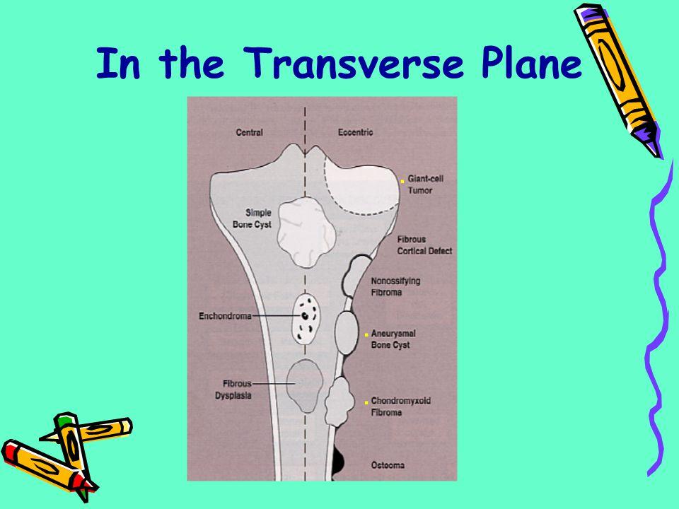 In the Transverse Plane...