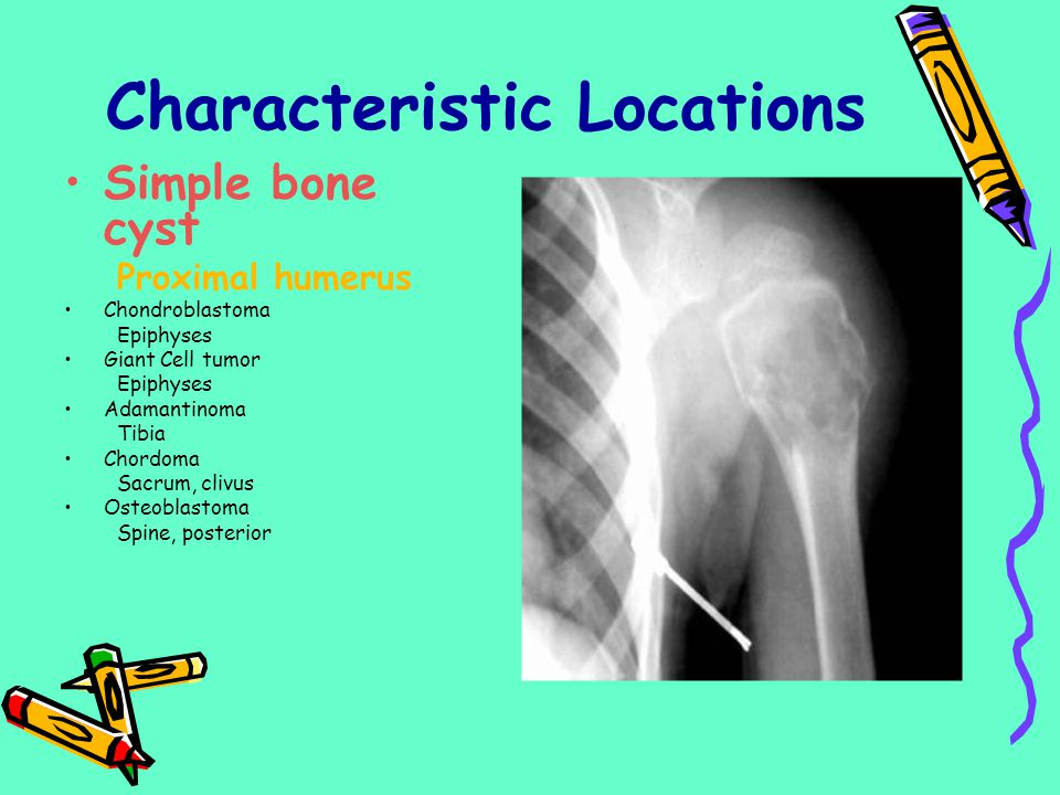 Characteristic Locations Simple bone cyst Proximal humerus Chondroblastoma Epiphyses Giant Cell tumor Epiphyses Adamantinoma Tibia Chordoma Sacrum, cl