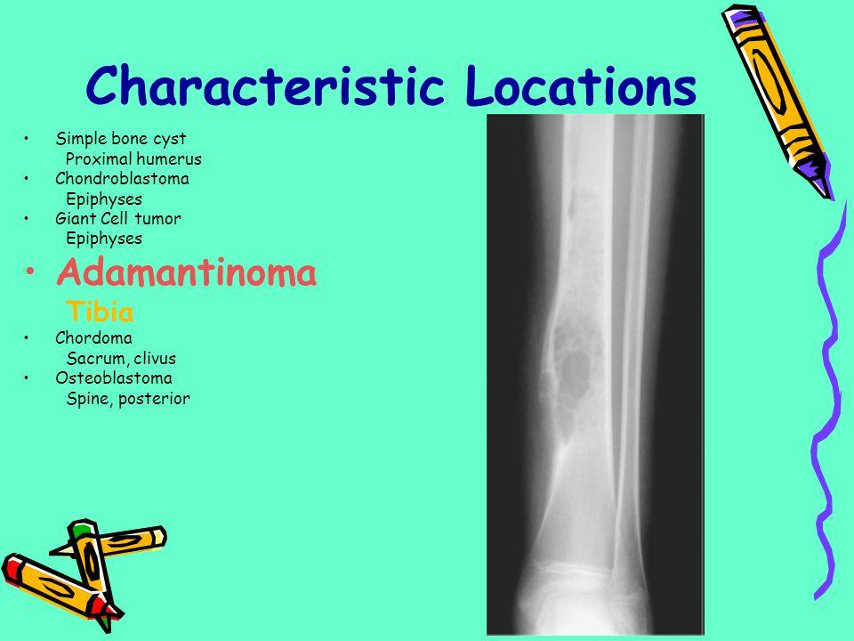 Simple bone cyst Proximal humerus Chondroblastoma Epiphyses Giant Cell tumor Epiphyses Adamantinoma Tibia Chordoma Sacrum, clivus Osteoblastoma Spine,