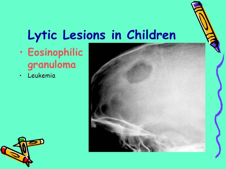 Lytic Lesions in Children Eosinophilic granuloma Leukemia