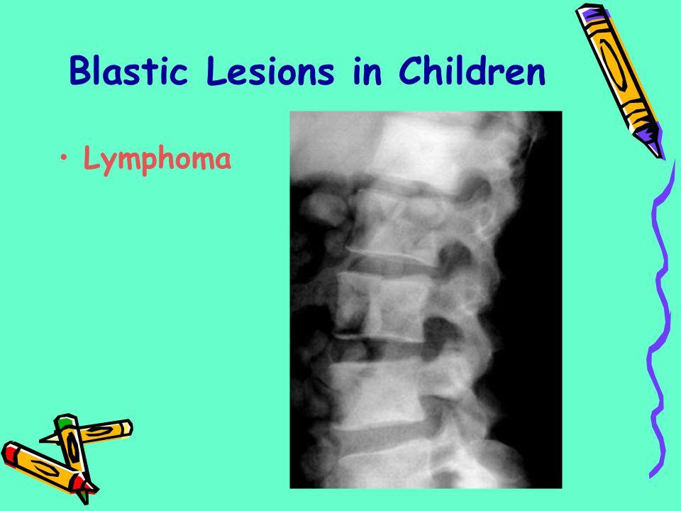 Lymphoma Blastic Lesions in Children