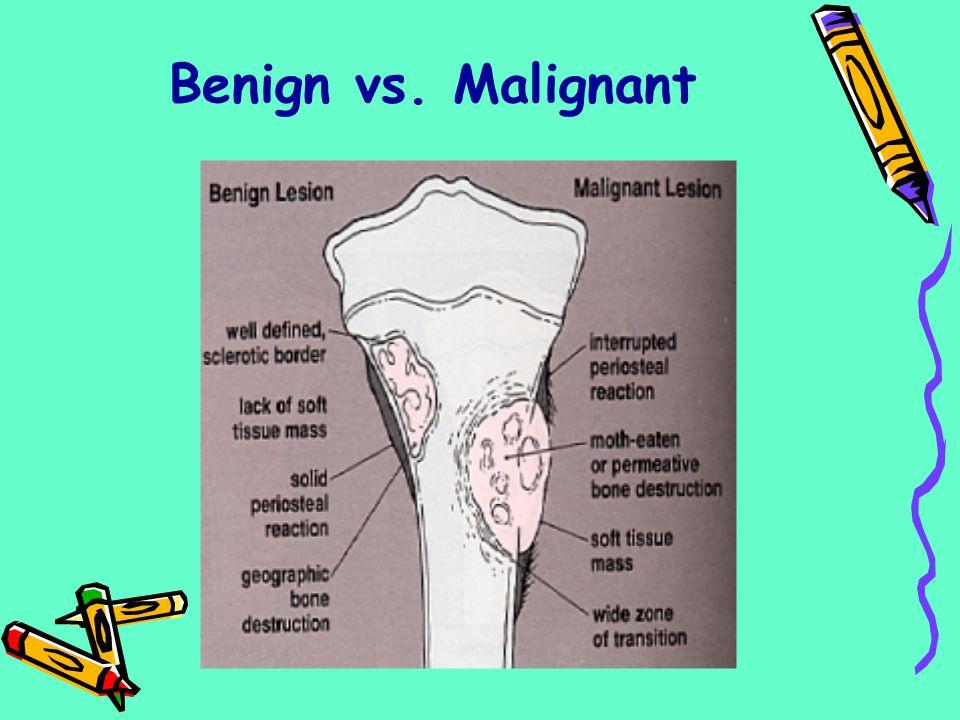 Benign vs. Malignant