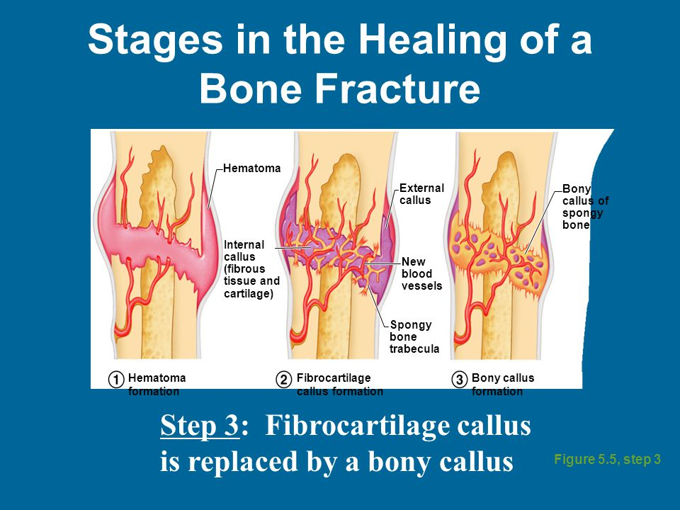 Stages in the Healing of a Bone Fracture Figure 5.5, step 3 Hematoma External callus Bony callus of spongy bone New blood vessels Internal callus (fibrous tissue and cartilage) Spongy bone trabecula Hematoma formation Fibrocartilage callus formation Bony callus formation Step 3: Fibrocartilage callus is replaced by a bony callus