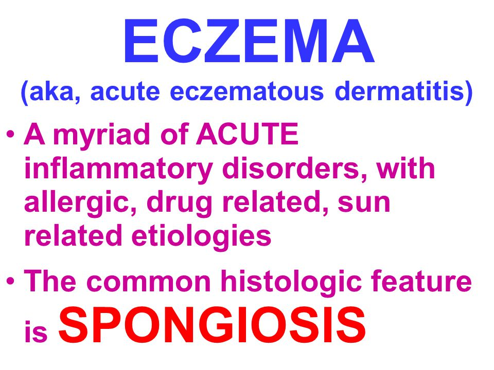 ECZEMA (aka, acute eczematous dermatitis) A myriad of ACUTE inflammatory disorders, with allergic, drug related, sun related etiologies The common hi