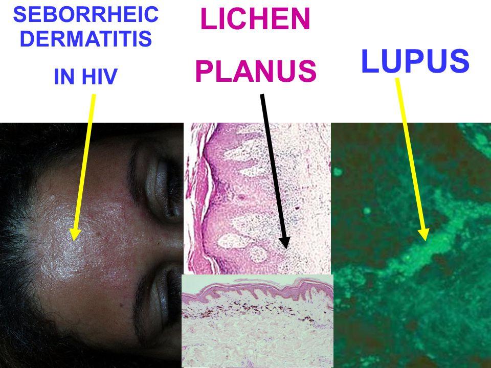 SEBORRHEIC DERMATITIS IN HIV LICHEN PLANUS LUPUS