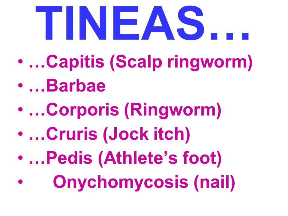 TINEAS… …Capitis (Scalp ringworm) …Barbae …Corporis (Ringworm) …Cruris (Jock itch) …Pedis (Athlete's foot) Onychomycosis (nail)