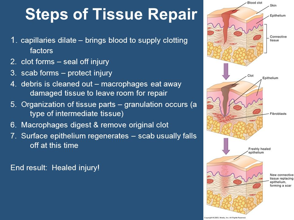 Steps of Tissue Repair 1. capillaries dilate – brings blood to supply clotting factors 2.