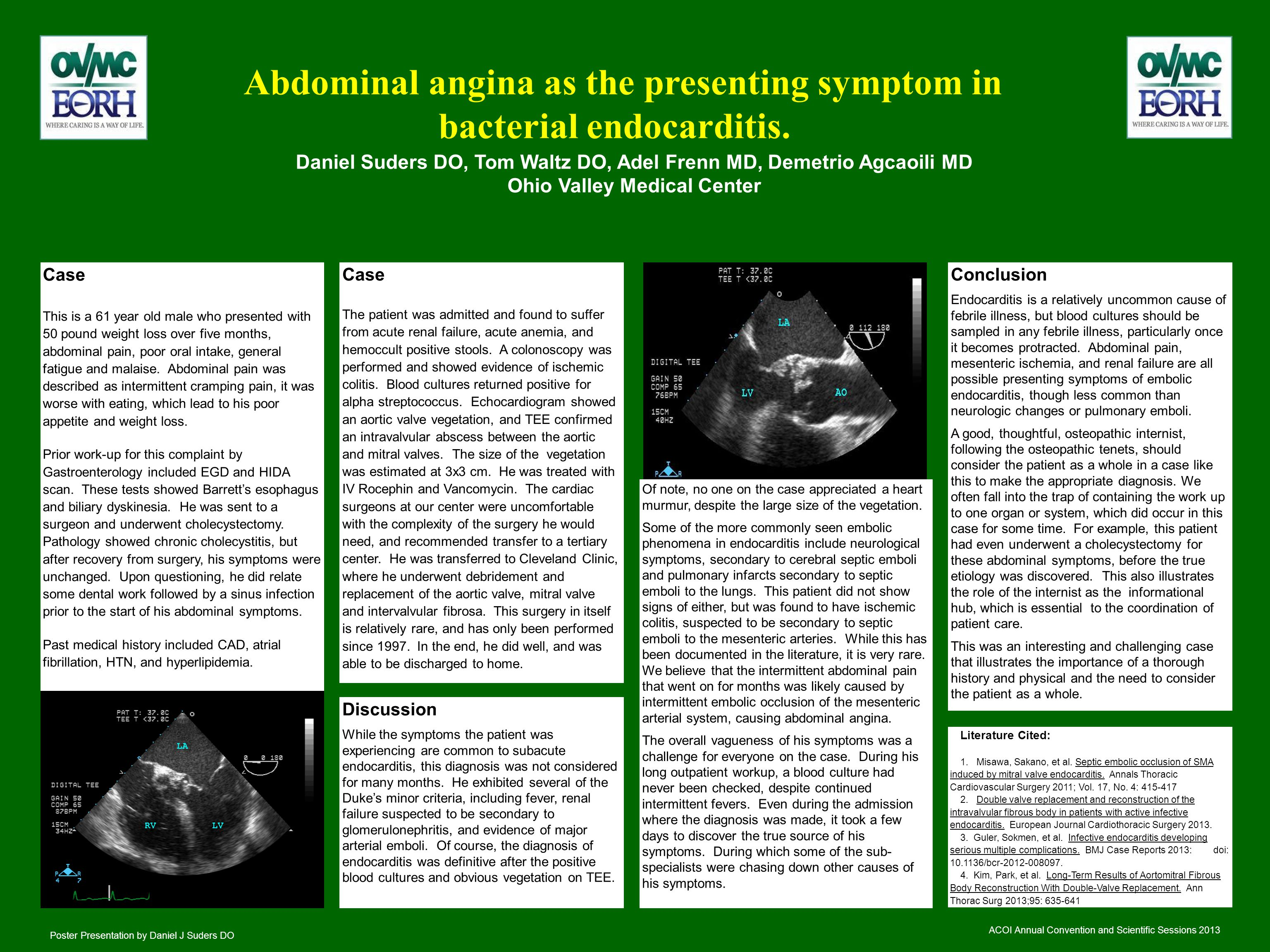 Abdominal angina as the presenting symptom in bacterial endocarditis.
