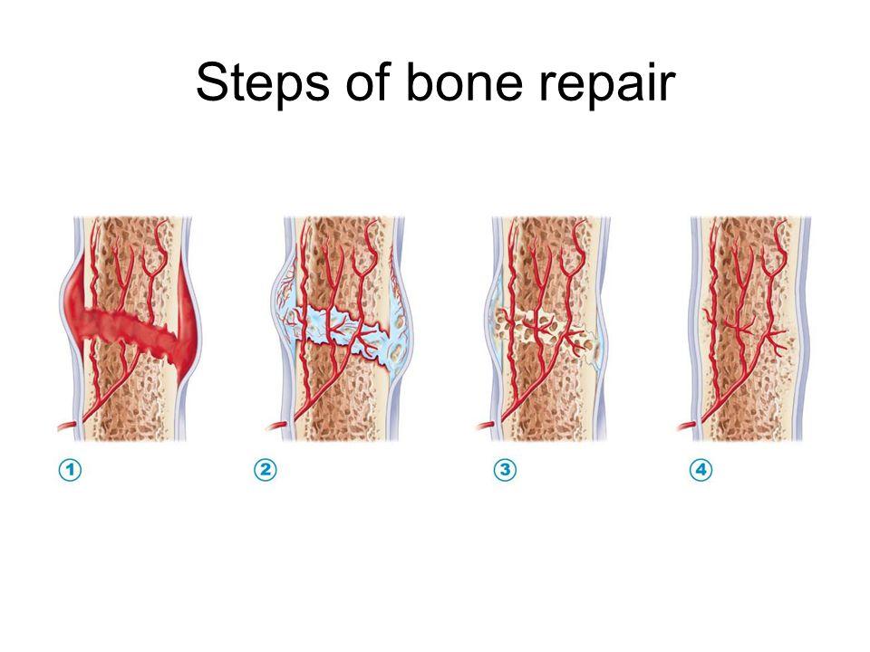 Steps of bone repair