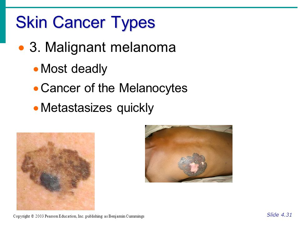 Skin Cancer Types Slide 4.30 Copyright © 2003 Pearson Education, Inc.
