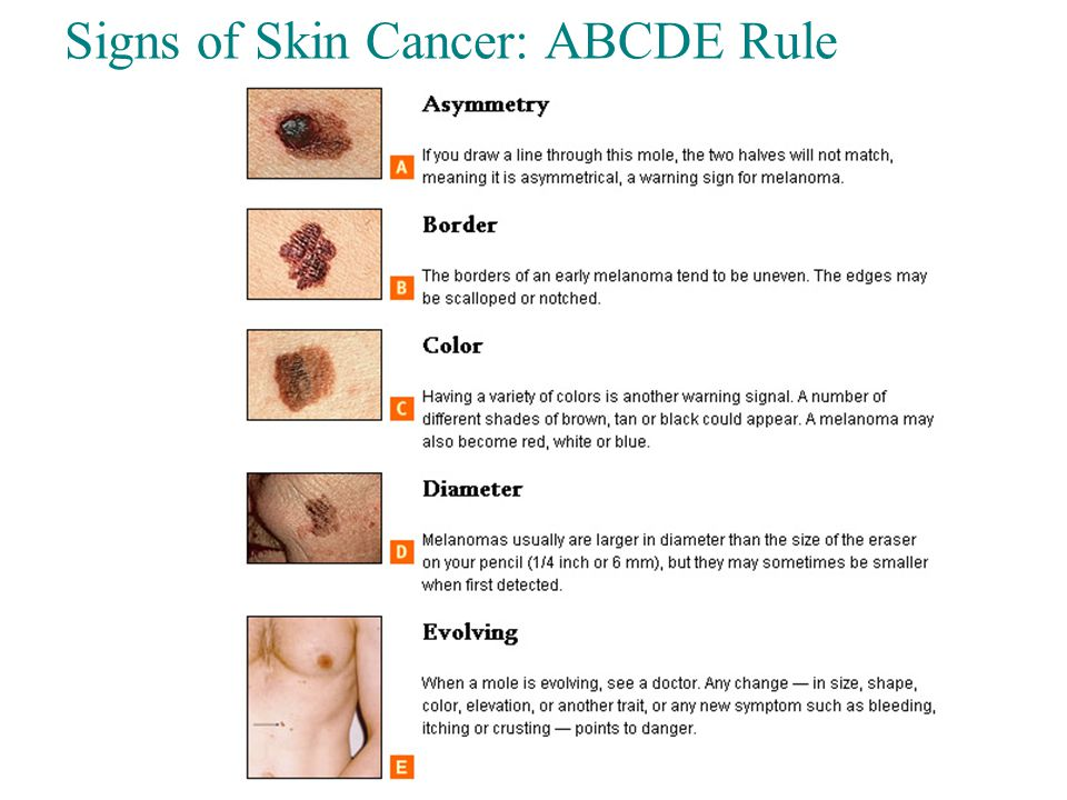 Skin Cancer Types Slide 4.31 Copyright © 2003 Pearson Education, Inc.