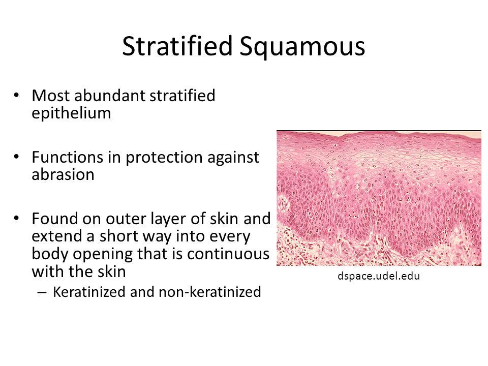 Stratified Squamous Most abundant stratified epithelium Functions in protection against abrasion Found on outer layer of skin and extend a short way into every body opening that is continuous with the skin – Keratinized and non-keratinized dspace.udel.edu