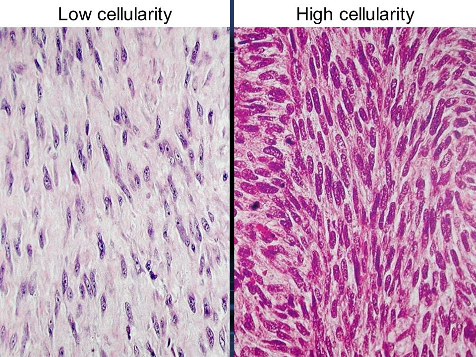 Low cellularityHigh cellularity