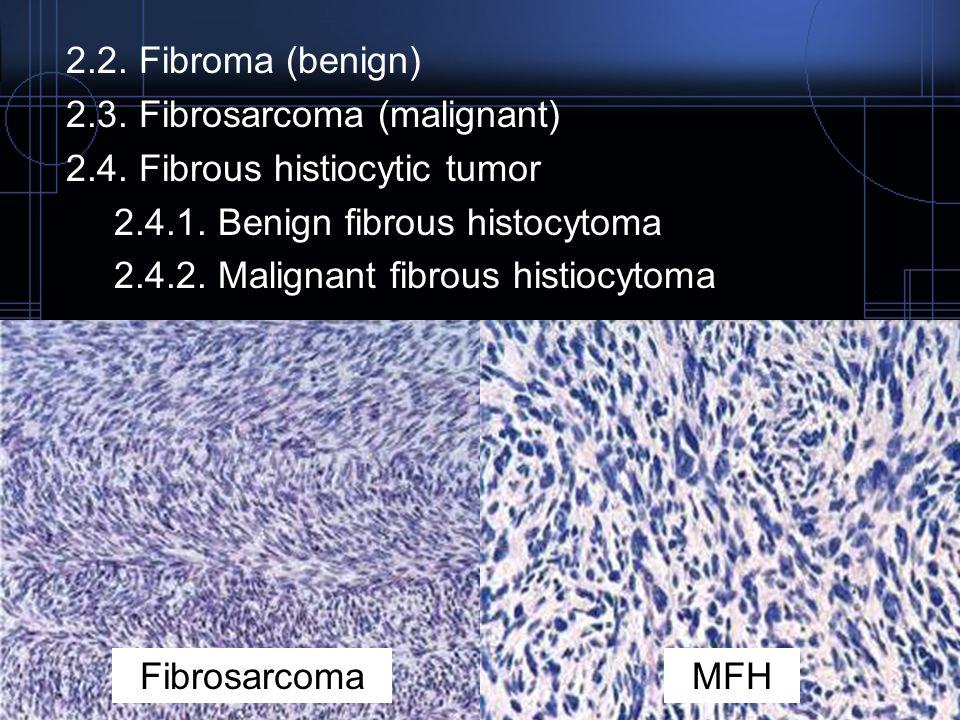 2.2. Fibroma (benign) 2.3. Fibrosarcoma (malignant) 2.4. Fibrous histiocytic tumor 2.4.1. Benign fibrous histocytoma 2.4.2. Malignant fibrous histiocy