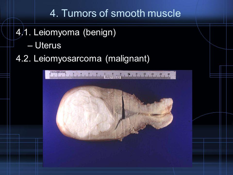 4. Tumors of smooth muscle 4.1. Leiomyoma (benign) –Uterus 4.2. Leiomyosarcoma (malignant)