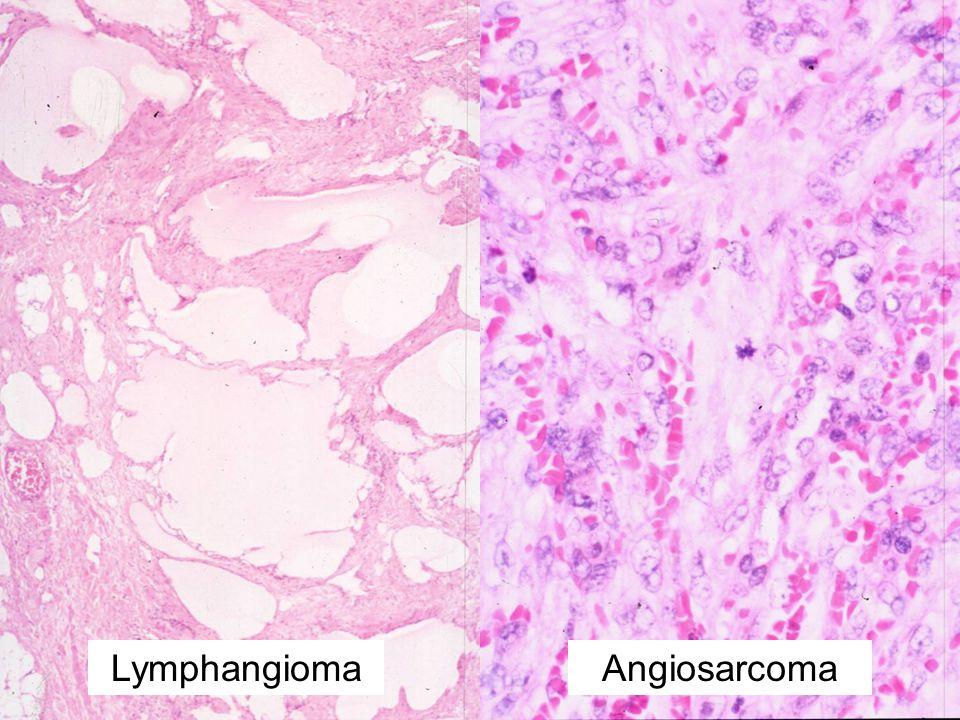 LymphangiomaAngiosarcoma