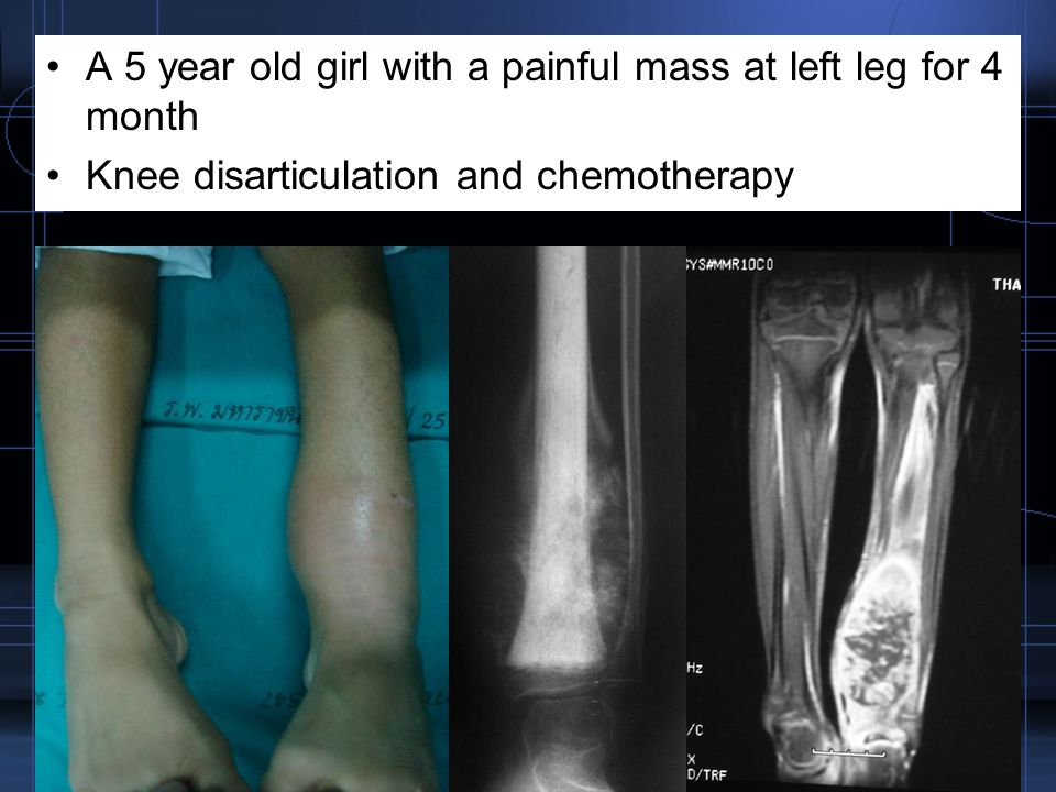 A 5 year old girl with a painful mass at left leg for 4 month Knee disarticulation and chemotherapy