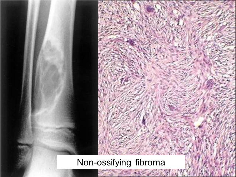 Non-ossifying fibroma