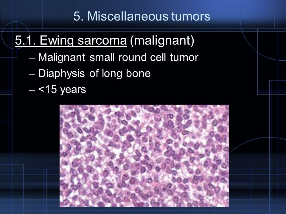 5. Miscellaneous tumors 5.1. Ewing sarcoma (malignant) –Malignant small round cell tumor –Diaphysis of long bone –<15 years