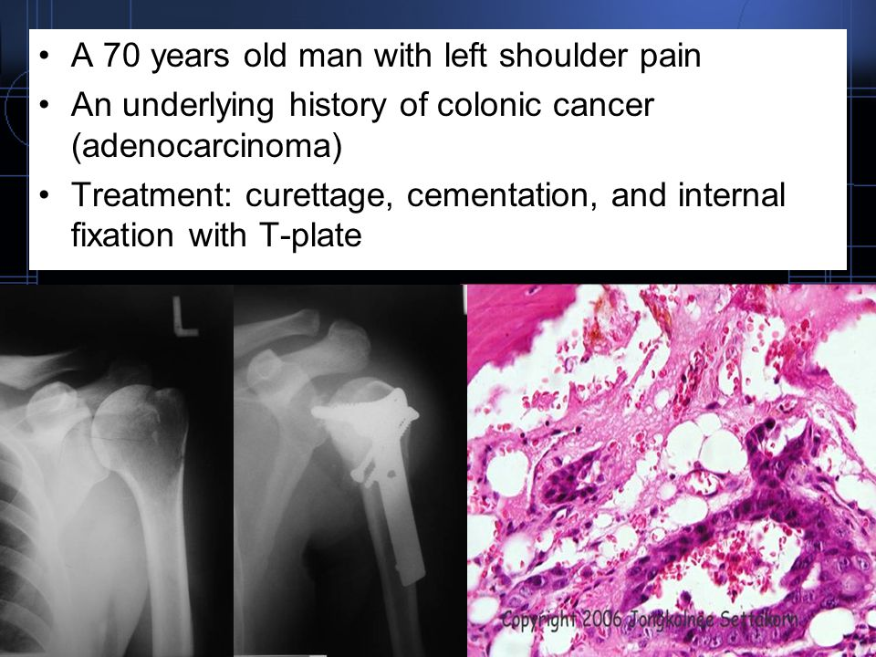 A 70 years old man with left shoulder pain An underlying history of colonic cancer (adenocarcinoma) Treatment: curettage, cementation, and internal fi